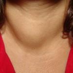 diet tiroid