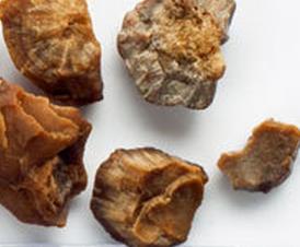Cara pencegahan batu ginjal