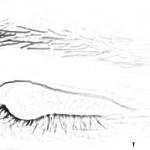 pengobatan mata timbilan