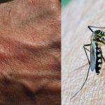 Cara alami mengatasi gigitan nyamuk